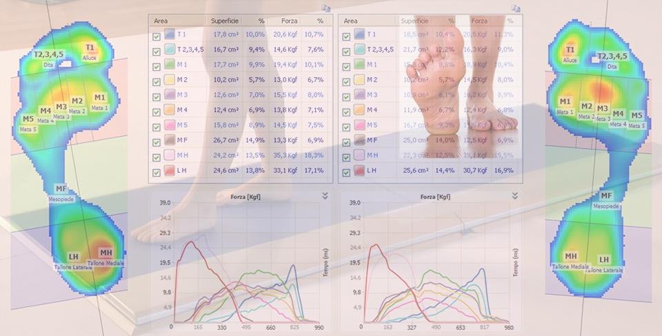 La pedana baropodometrica per valutare il piede a doppia componente